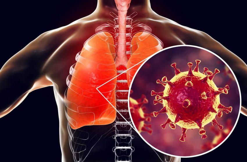 از شایعه تا واقعیت مشکلات تنفسی پس از بهبودی کرونا
