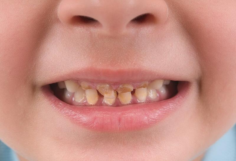 سیاه شدن دندان های کودکان و پیشنهادهای کاربردی